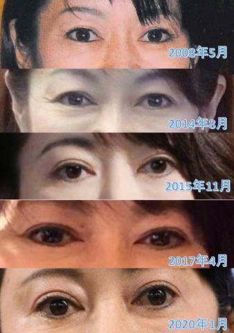 森雅子大臣の目は二重に整形?変化を比較!