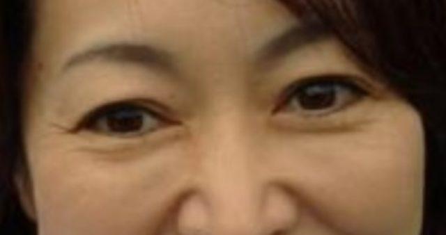 森雅子大臣に整形疑惑?目の二重をいじった?
